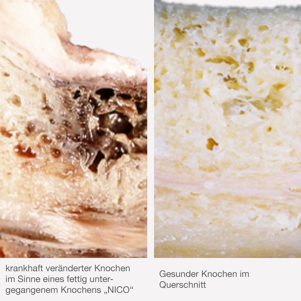 Kieferknochen-Entzündung Bernrie